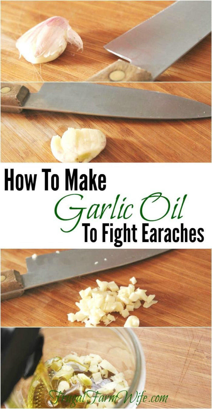Learn how to make garlic oil to fight earaches. This is an amazing home remedy!
