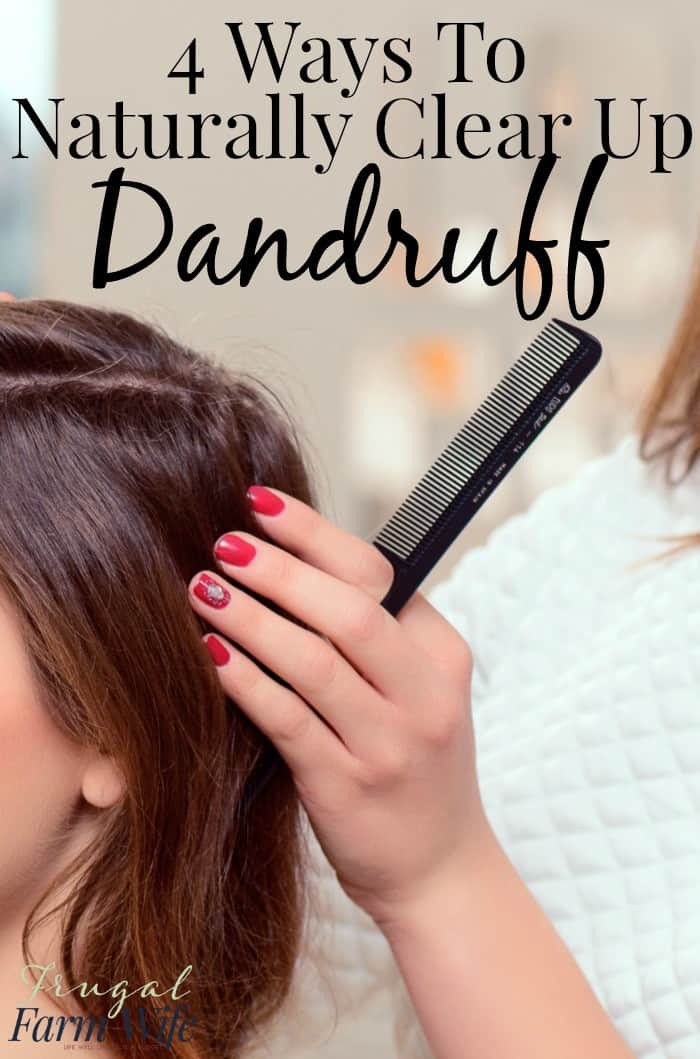 Learn this blogger's awesome 4 ways to clear up dandruff!